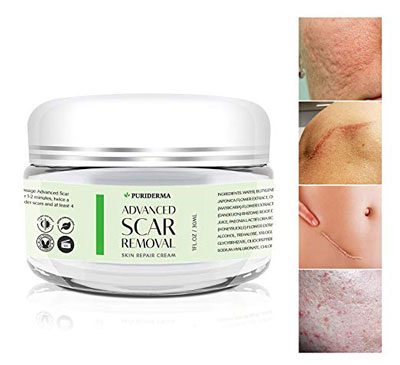 8. Puriderma Advanced Treatment Scar Cream Natural Herbal